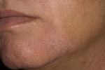Себорейный дерматит на лице (фото 4)