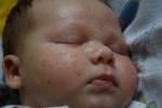 Сыпь на лице у новорожденного