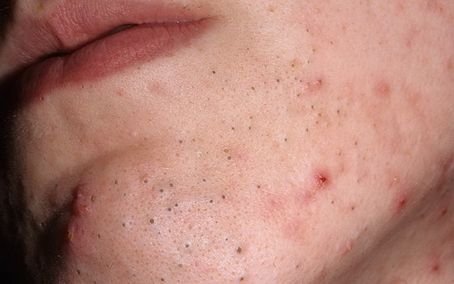 Чем вылечить угревую сыпь на лице в домашних условиях