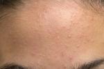 Сыпь на лице (фото №1)