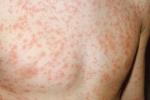 Сыпь на теле у ребенка: виды высыпаний на коже у детей