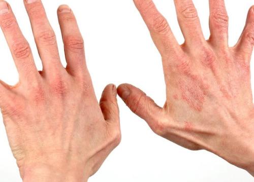Сыпь на руках и ногах чешется и шелушится