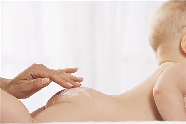 Лечение пеленочного дерматита