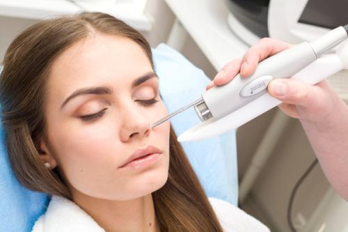 Лазерная терапия лечения угрей