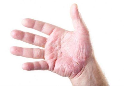 атопическая экзема на руках