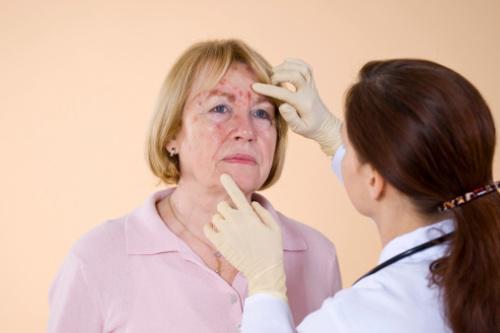 Сыпь при кожных заболеваниях