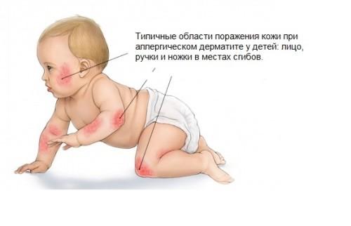 Симптомы аллергического дерматита
