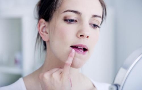 Чем мазать герпес на губах