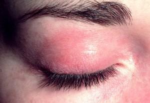 Лекарственный дерматит