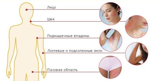 Локализация дерматитов