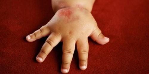 Грибковый дерматит у ребенка