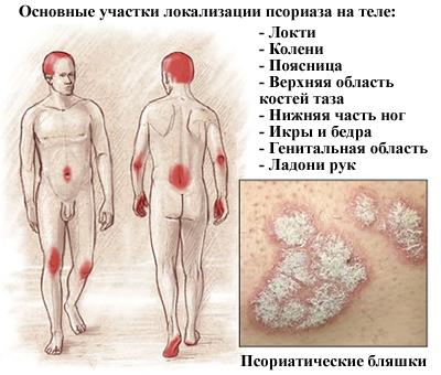 psoriasis test