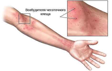 Симптомы чесотки на руках