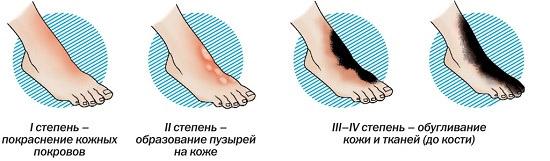 Степени обморожения пальцев