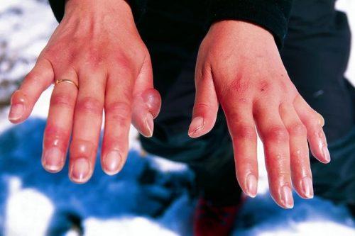 Обморожение рук 3 степени