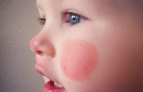 Обморожение щек у ребенка