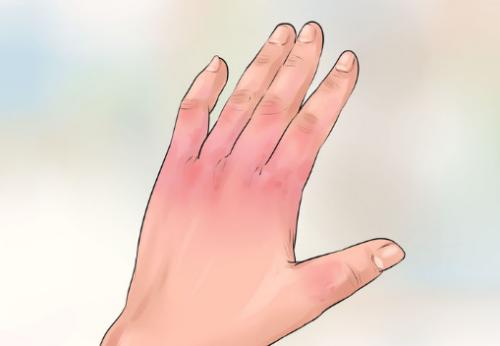 Обморожение рук 1 степени