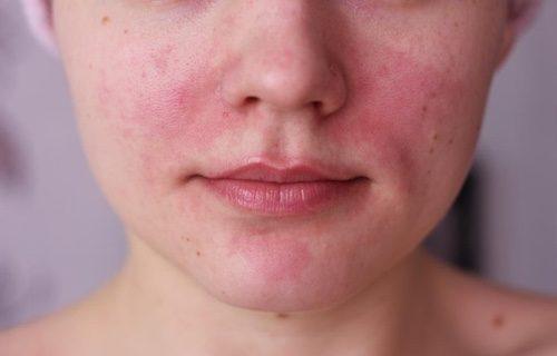 Раздражение на коже