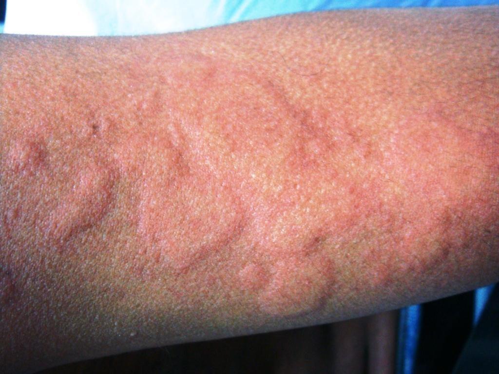 Симптомы крапивницы