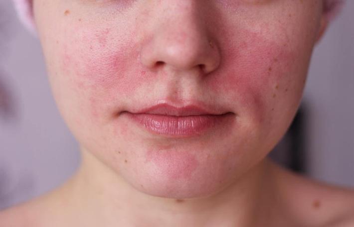 Обветривание кожи