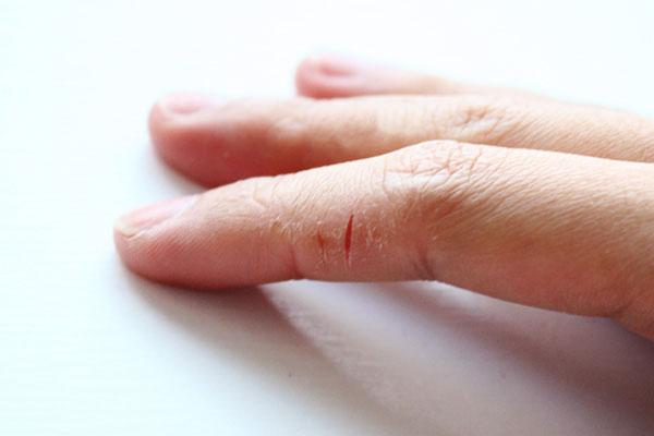 Обветренные руки